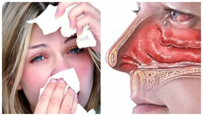 если течет из носа как лечить