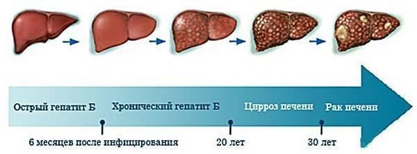 Рак печени: причины, симптомы, диагностика, лечение и прогноз