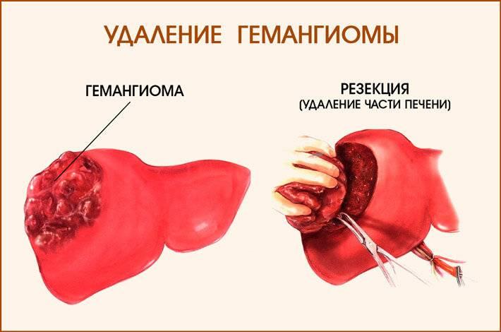 Гемангиома печени: симптомы и лечение доброкачественного новообразования