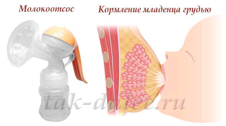 Водочный компресс при лакстостазе