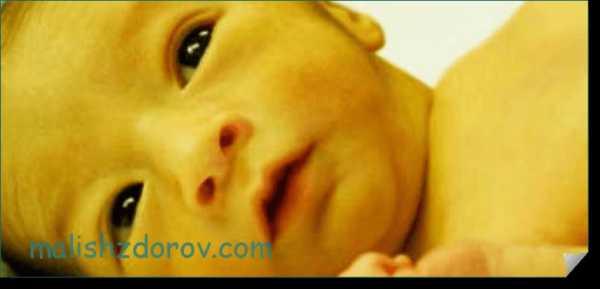 Каротиновая желтуха: из-за чего кожа становится желтой?