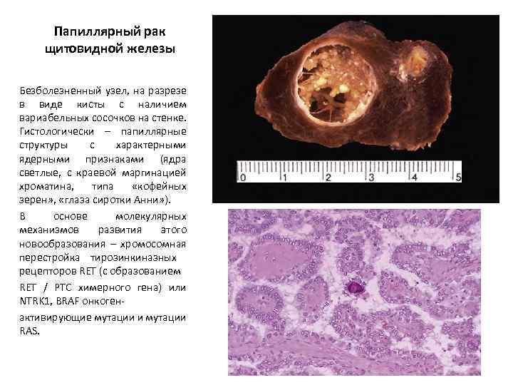 Особенности развитияпапиллярного рака щитовидной железы