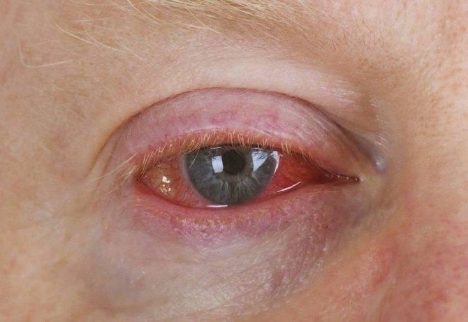 красные капилляры в глазах у грудничка