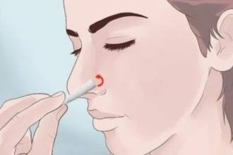 Турунды для носа: как сделать? из ваты и бинта. с левомеколем