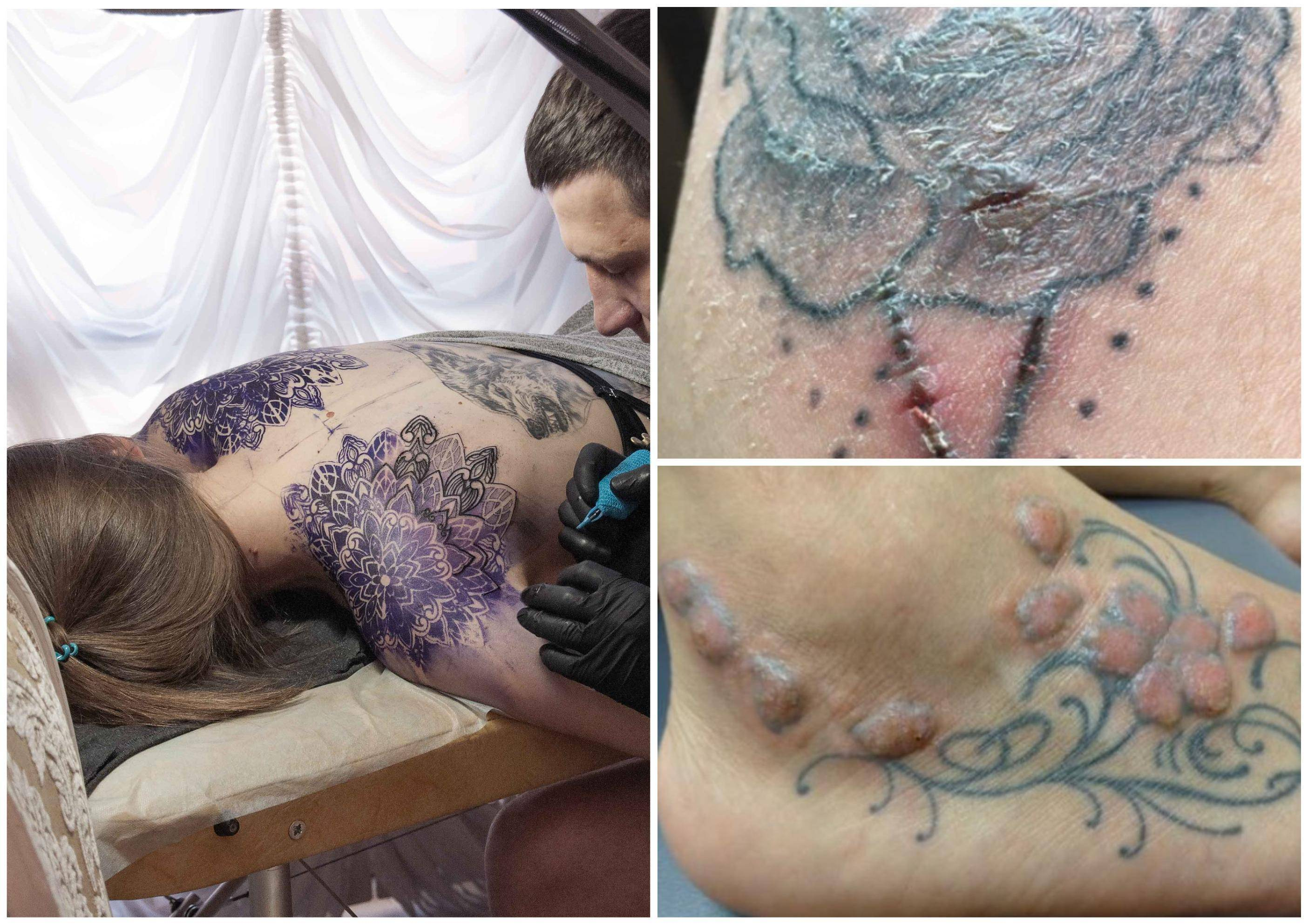 татуировки при псориазе