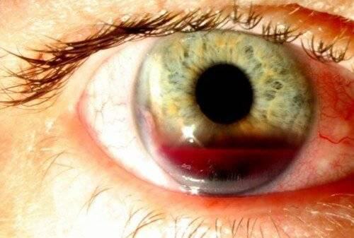 Ушиб глазного яблока