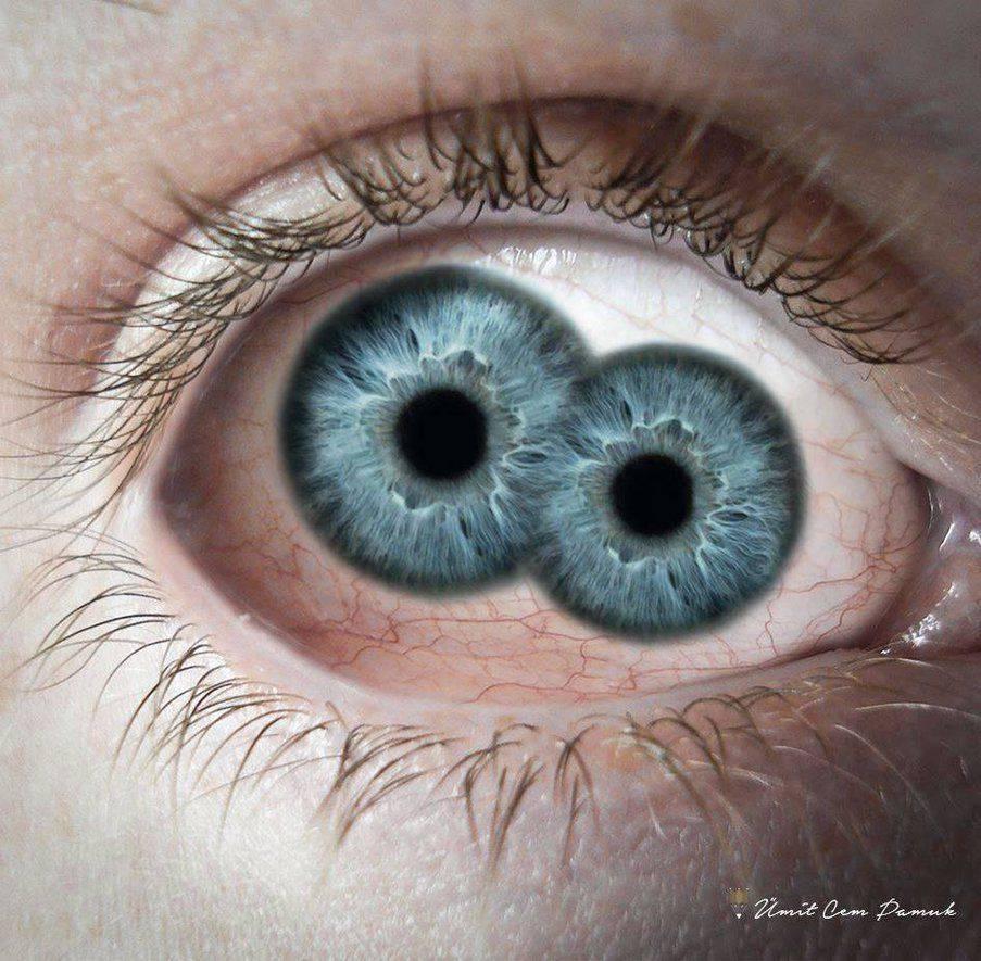 Диплопия: лечение, как лечить бинокулярную и монокулярную, излечима ли, как избавиться от двоения в глазах, упражнения по кащенко