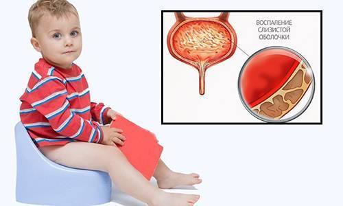 цистит лечение у детей 5 лет