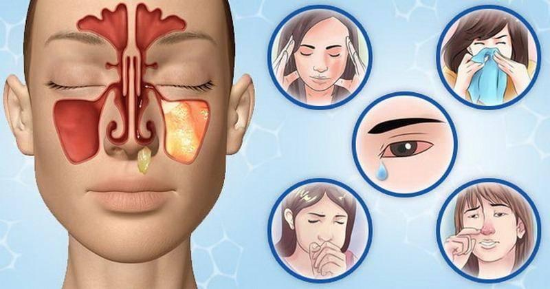 Гнойный гайморит: лечение в домашних условиях, симптомы, что делать