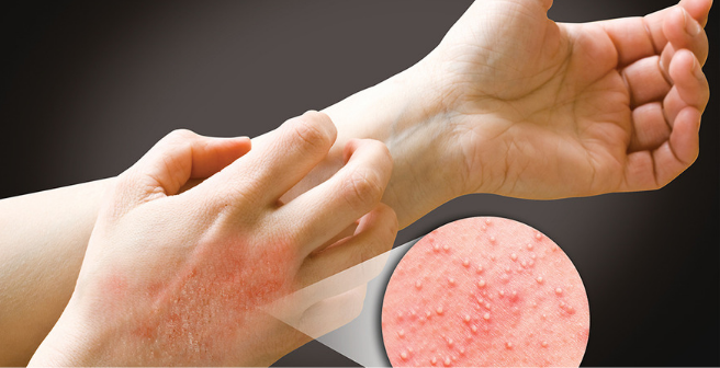 Аллергический дерматит лечение народными средствами у взрослых