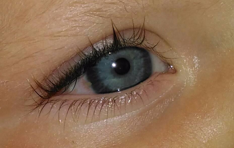 Прозрачные пузырьки на глазу - на глазу появился прозрачный пузырек - запись пользователя natasha (whiskas67) в сообществе здоровье новорожденных в категории болезни глаз - babyblog.ru