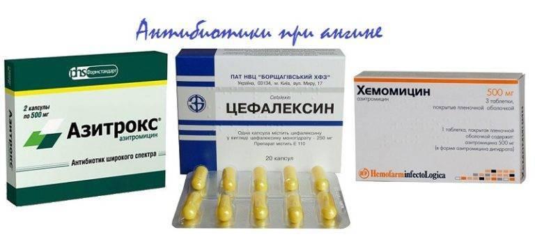 Применение антибиотиков при лечении острого синусита