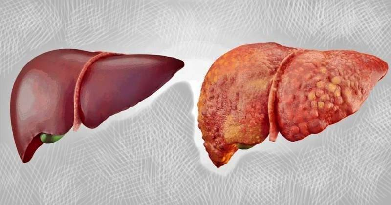 Лечение и питание при ожирении печени