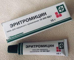Пероральный дерматит на лице: причины у взрослых и детей, способы лечения