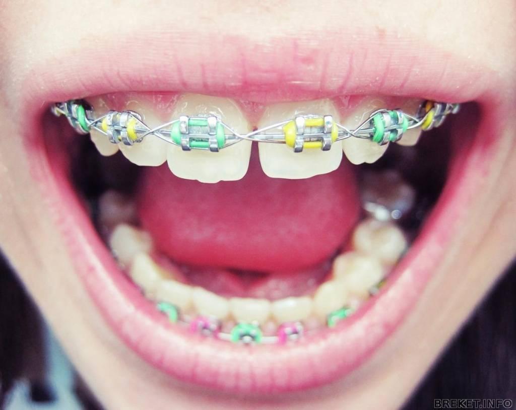 как ставятся брекеты на зубы