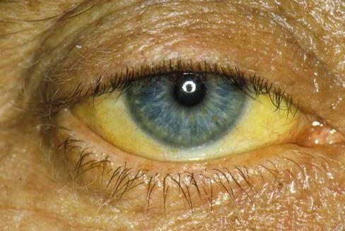 у младенца желтые белки глаз
