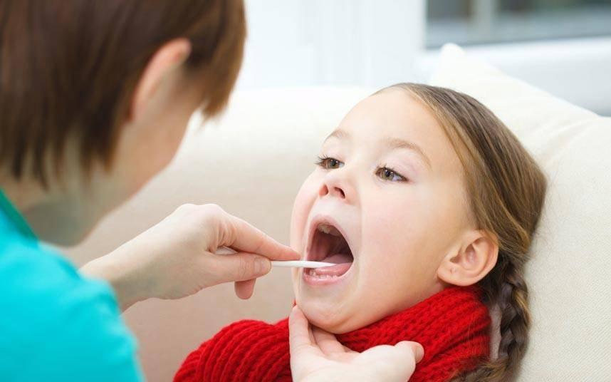 Вирусная ангина у детей