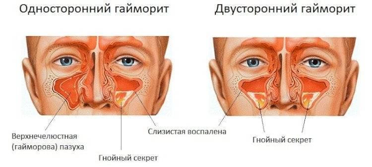 Антибиотики при гайморите – наиболее эффективные капли в нос с антибиотиком, мазь, уколы