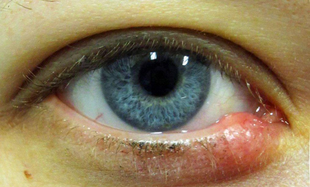 нужно ли греть ячмень на глазу
