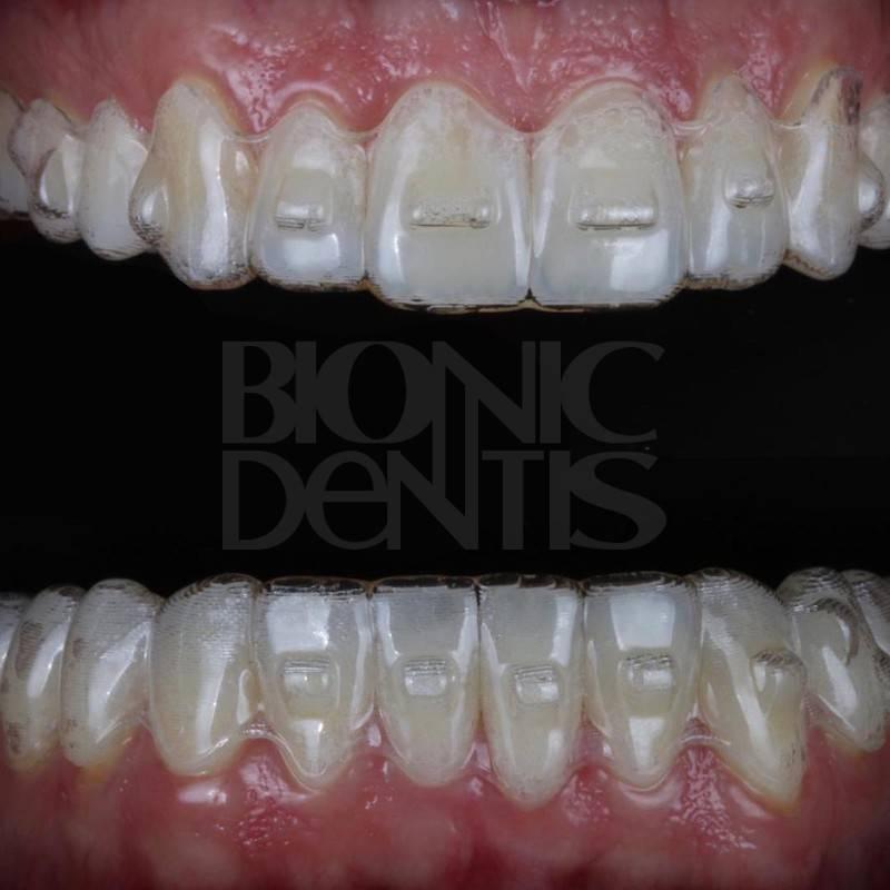 элайнеры для зубов