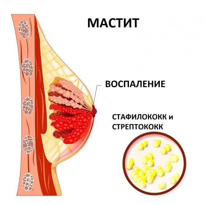 Болит грудь надавливании больно