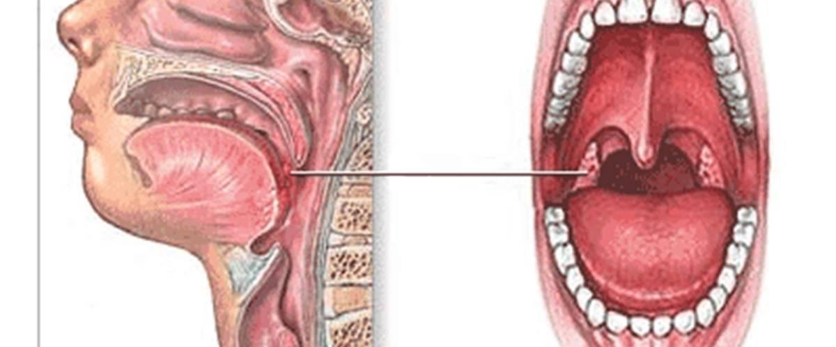 Температура при ангине у взрослого