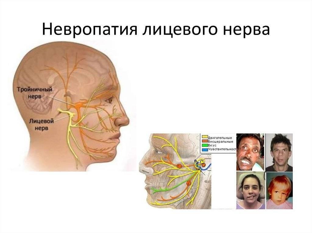 невропатия лицевого нерва причины и лечение