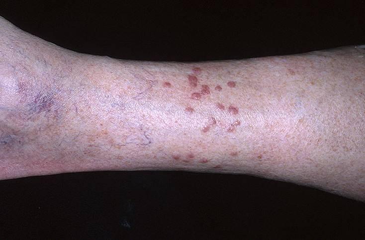 Контактный дерматит от укуса лечение