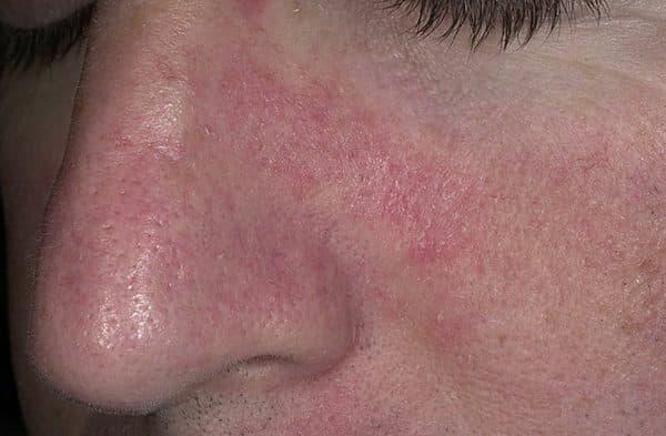 Сухая себорея кожи головы и лица - симптомы и лечение медикаментозными и народными средствами