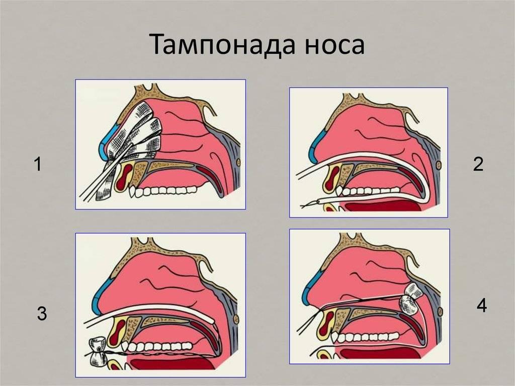 Ватные турундочки для чистки носика. - запись пользователя екатерина (emalach) в дневнике - babyblog.ru