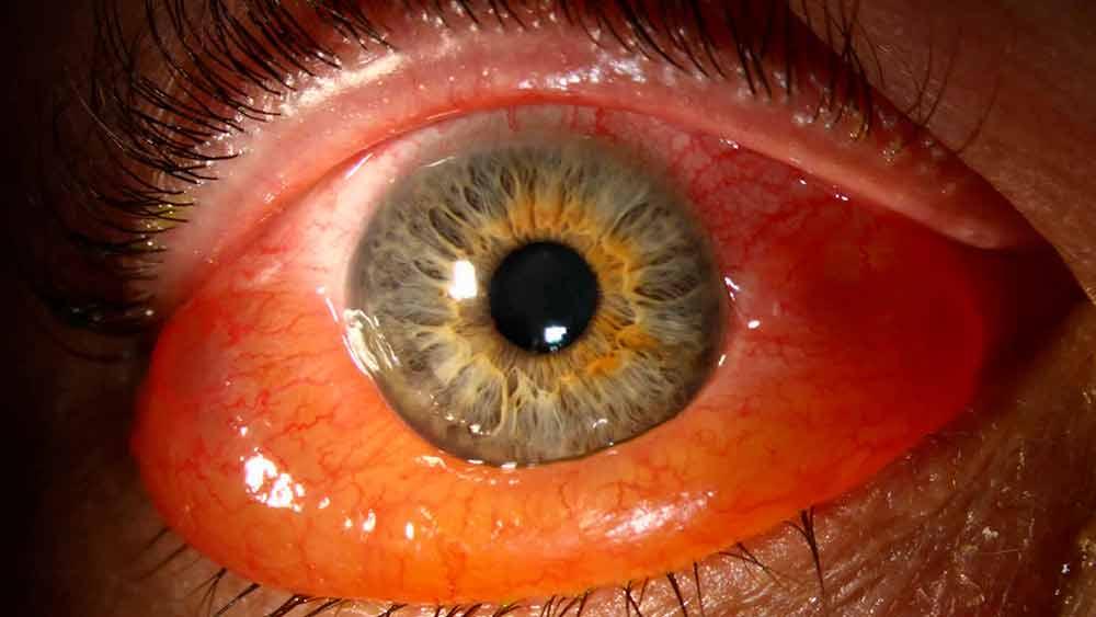 Воспаление оболочки глаза: причины, симптомы. лечение воспаления радужной оболочки глаза