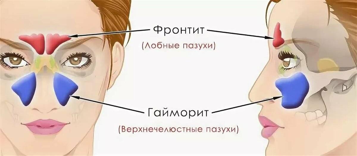 Фронтит – симптомы и лечение у взрослых. как лечить острый, хронический фронтит (воспаление лобных пазух)