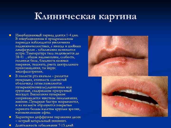 Инкубационный период герпеса на губах