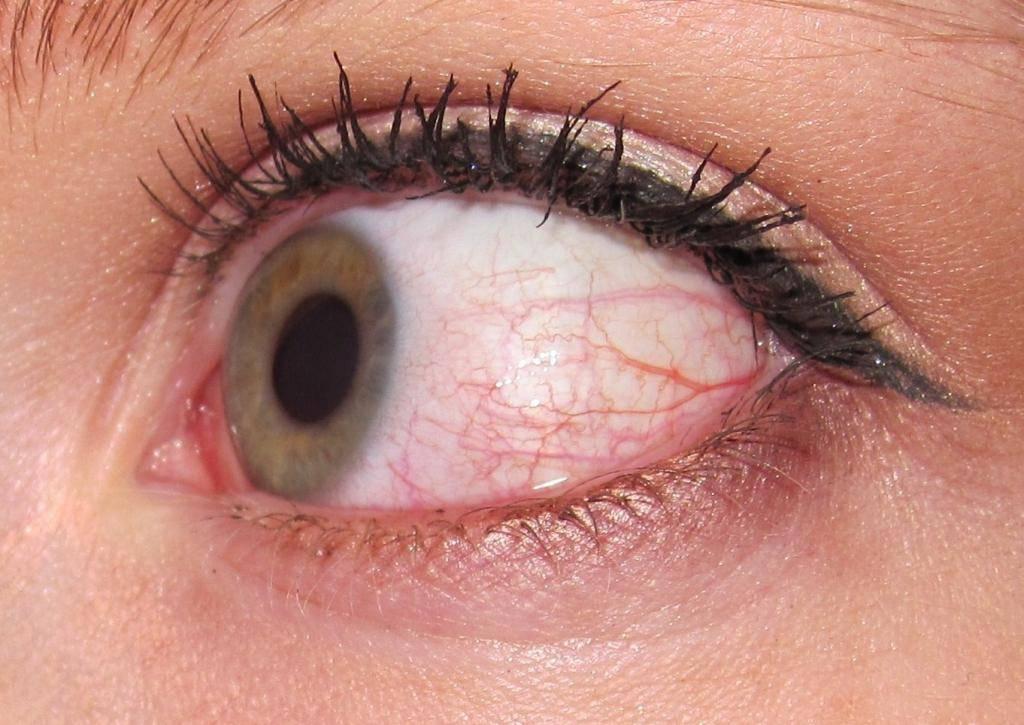 после снятия линз красные глаза