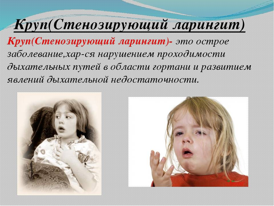 заболевание круп у детей
