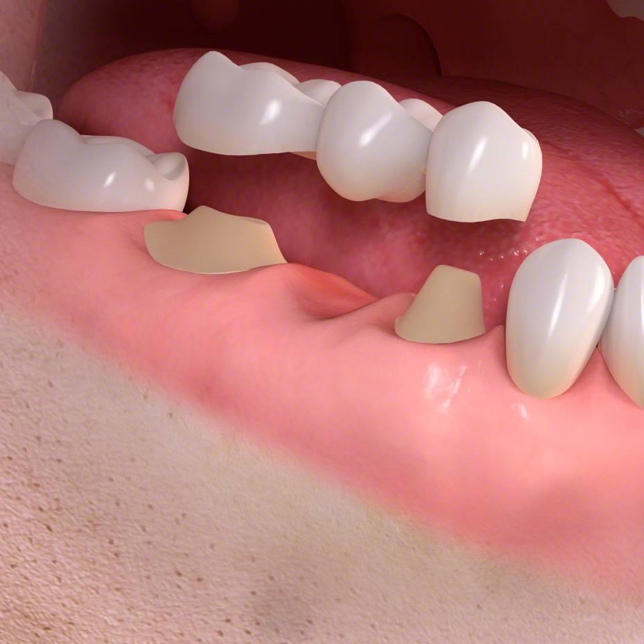 Протезирование зубов: виды протезов и цены на услуги в стоматологической клинике президент в москве