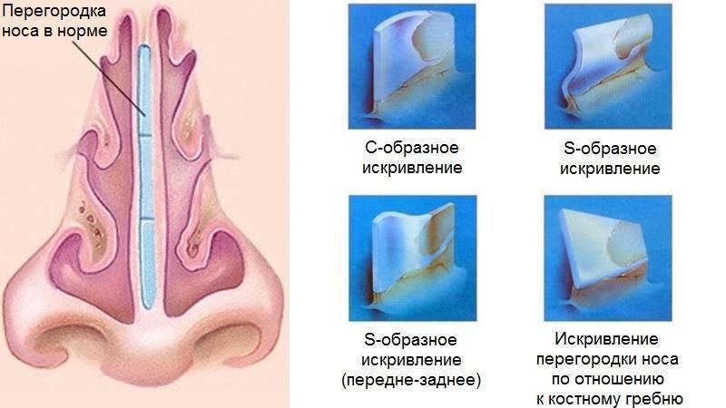 Ринопластика по типу носа