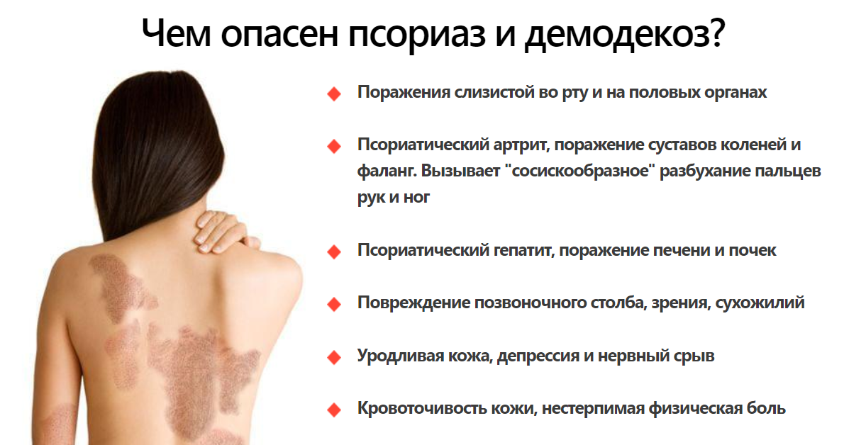 от чего появляется псориаз на теле