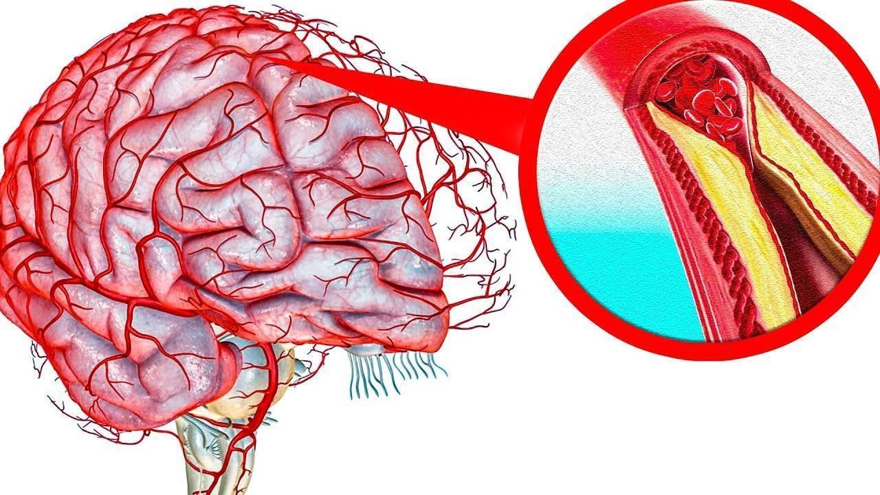 Атеросклероз сосудов головного мозга – симптомы, лечение, диета
