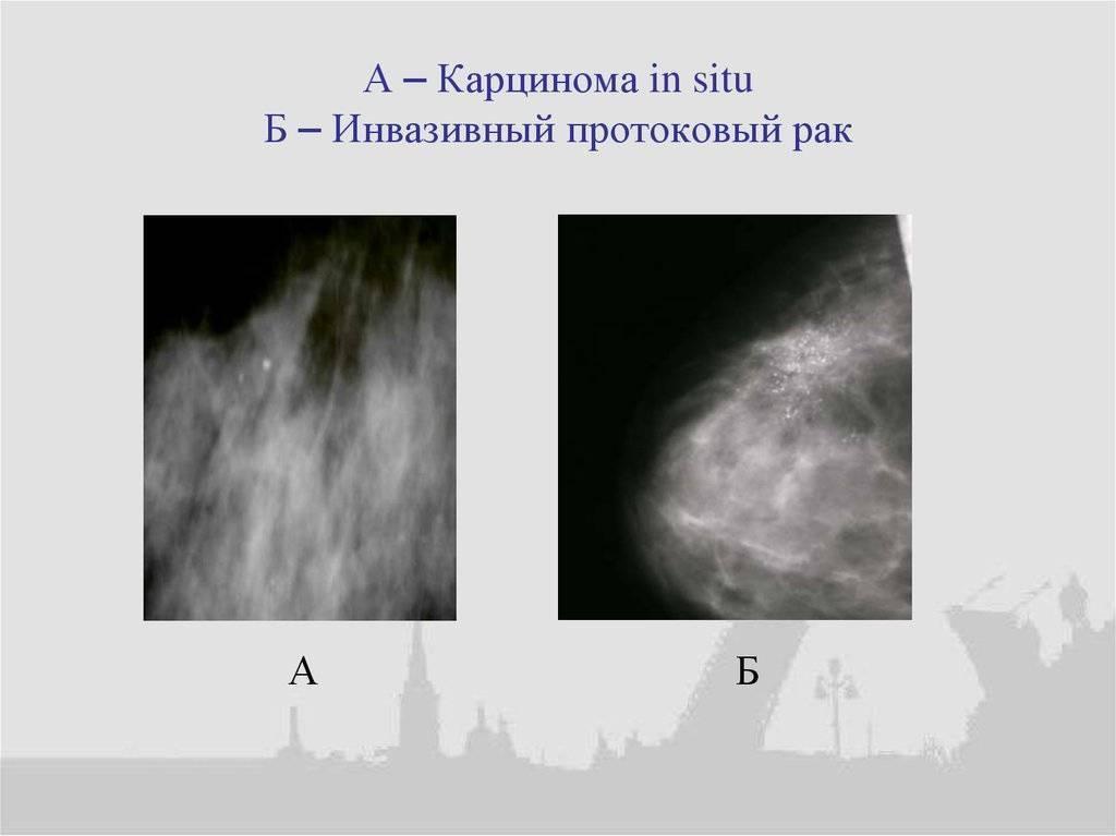 инвазивный неспецифицированный рак молочной железы