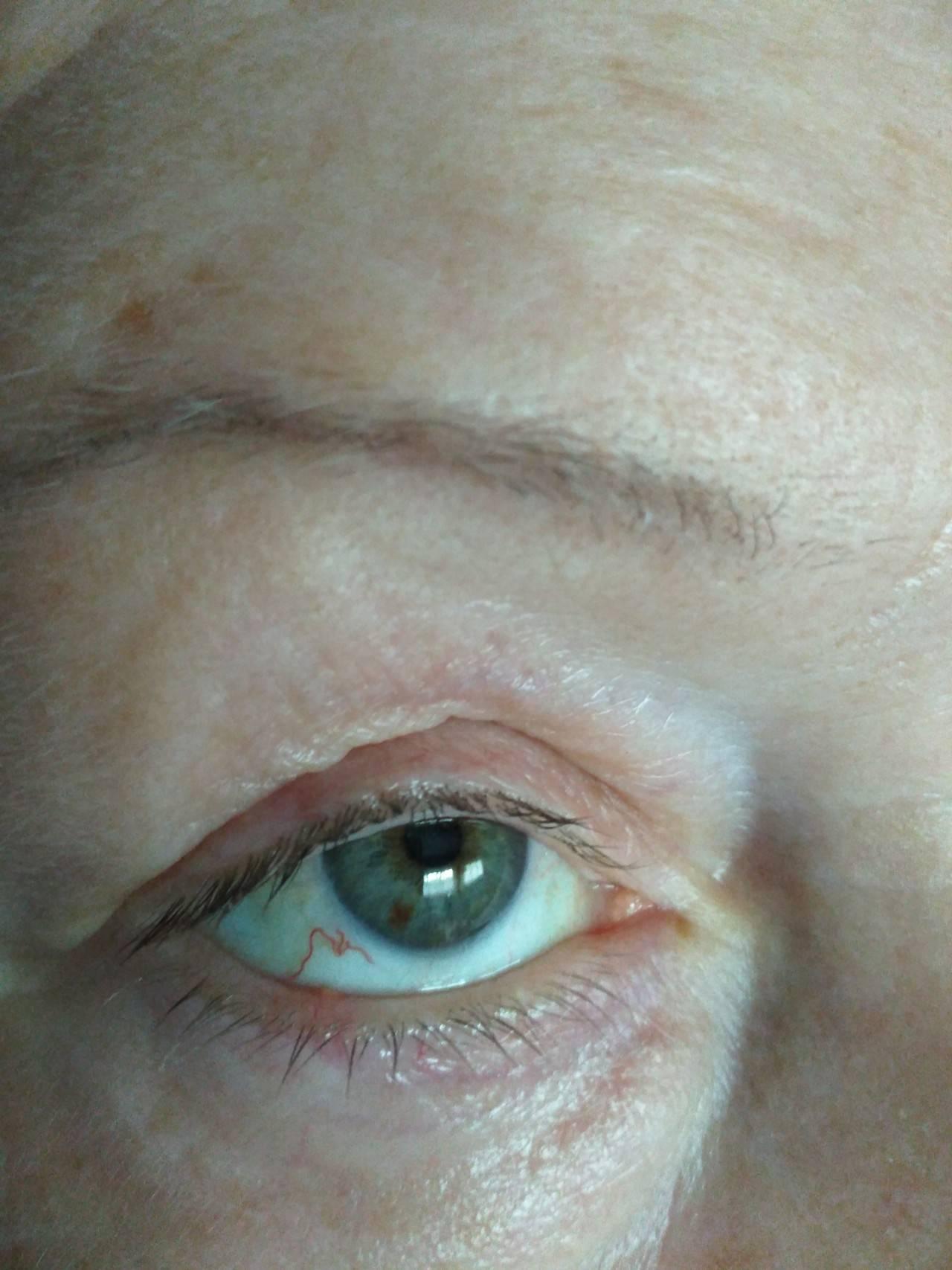 Красные веки: причины симптома