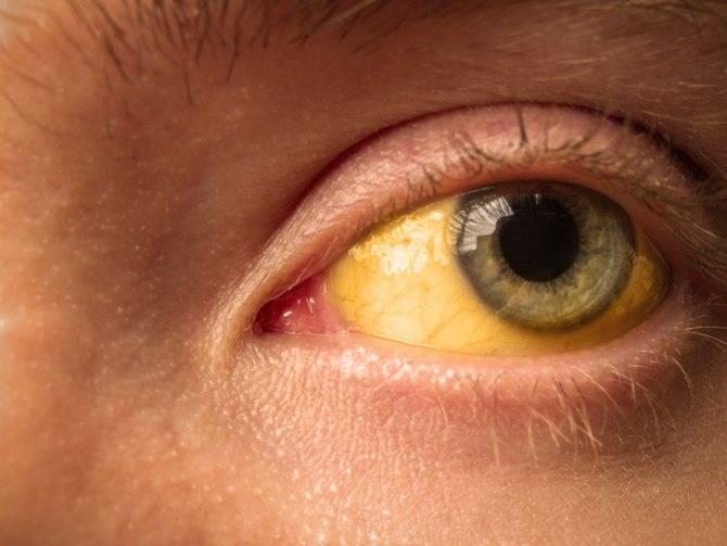 Желтые белки глаз у новорожденных: причины и симптомы, фото, лечение