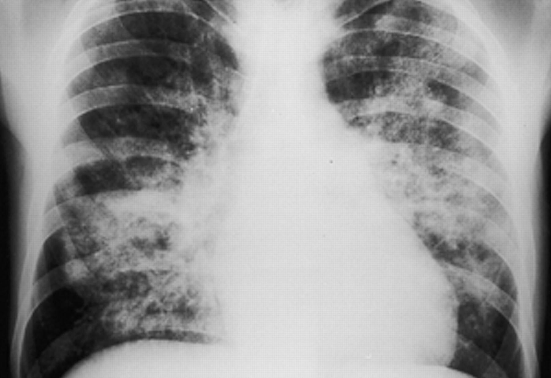 Пневмоцистоз (пневмоцистная пневмония)