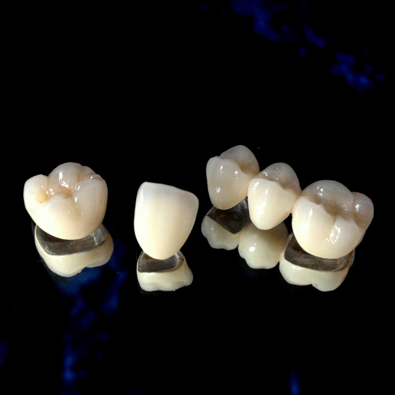 Подготовка зуба к протезированию под коронку – профимед