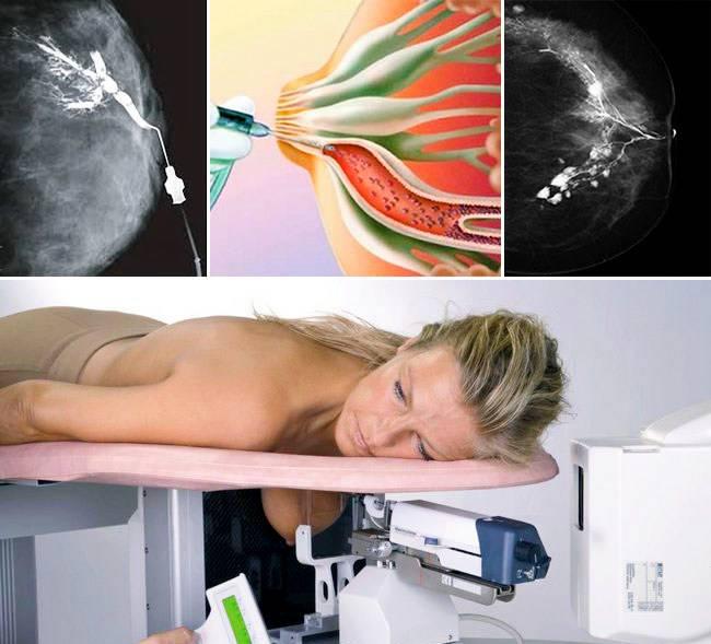 когда нужно идти к маммологу