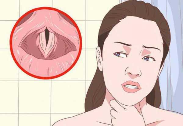 Симптоматика ларингита и фарингита