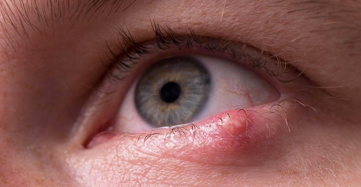 Опасен ли ячмень на глазу при беременности. причины, симптомы, влияние на плод. лечение ячменя - spuzom.com