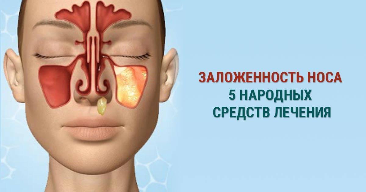 Заложенность носа у ребёнка без насморка лечение народными средствами