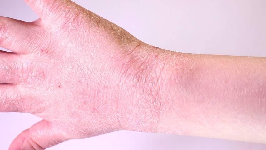 Чистотел: кожные болезни и экзема