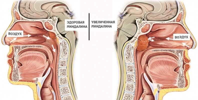 Как избавиться соплей в носоглотке - сопли в носоглотке - запись пользователя juliakabkova (id921447) в сообществе здоровье новорожденных в категории насморк и прочие заболевания носа - babyblog.ru